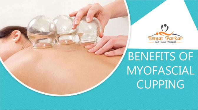 myofascial-cupping